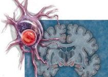 Нейродегеративні захворювання та їх причини