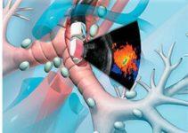 Нова програма діагностики раку без операції — Endobronchial ultrasound (EBUS)
