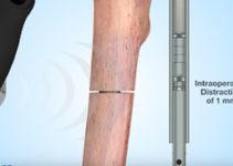 Новинка дитячої ортопедії — модуль Precice Nail для подовження нижніх кінцівок без спиць