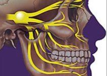 Переважний метод лікування невралгії трійчастого нерва